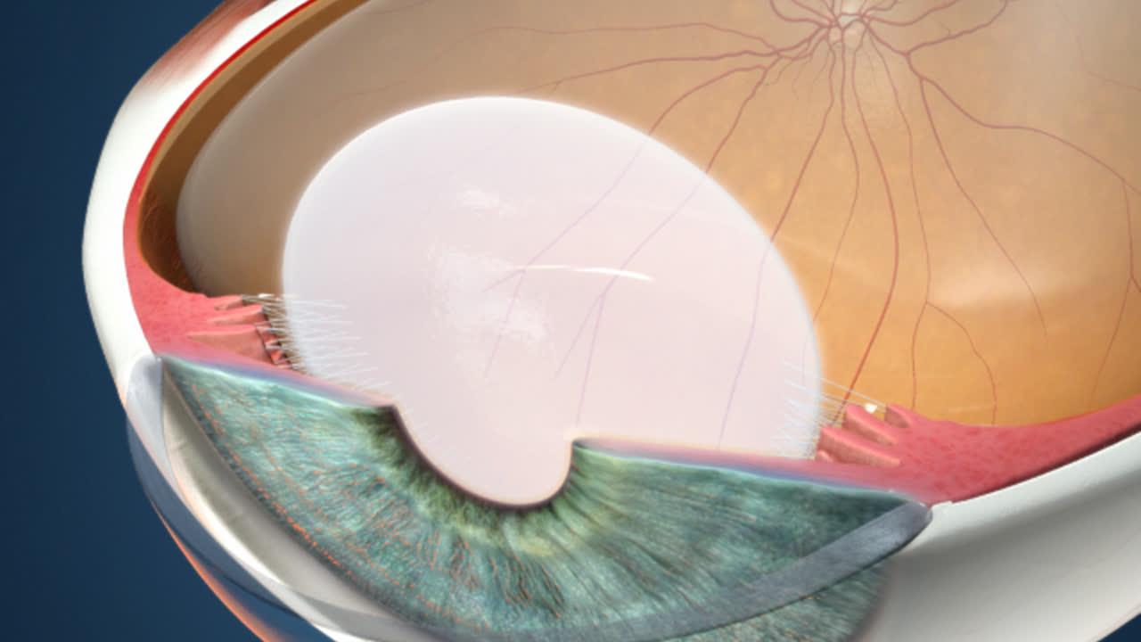 Rendia   Anatomy: Crystalline Lens