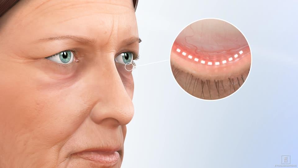 Eyelid Surgery Blepharoplasty Washington DC Maryland