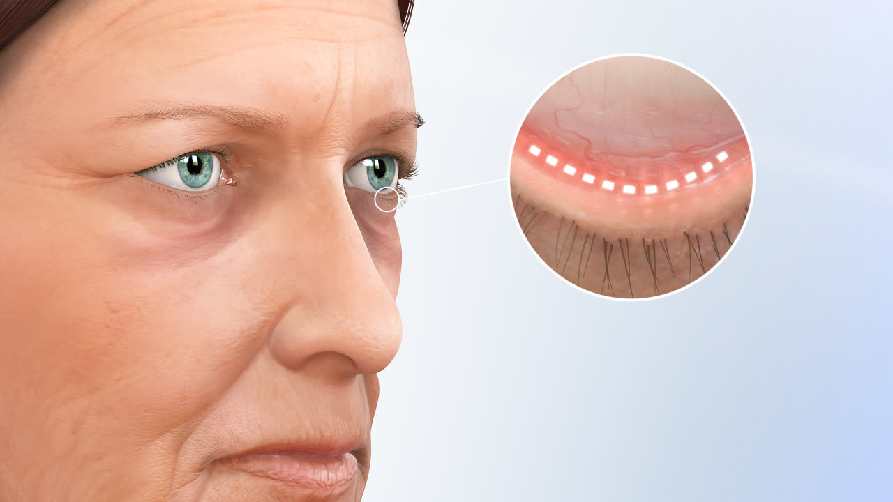 Eyelid Surgery Atlanta Blepharoplasty Atlanta Thomas Eye