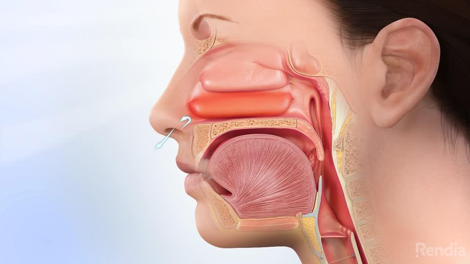 Getting Sinus Surgery in Houston TX | Allergy & ENT Associates