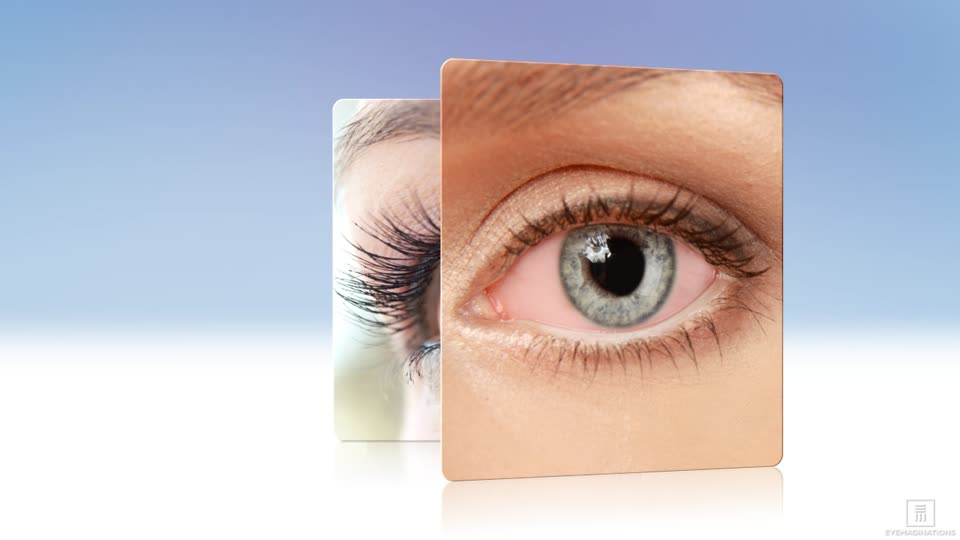 Dry Eye Syndrome Washington Dc Maryland Northern Virginia