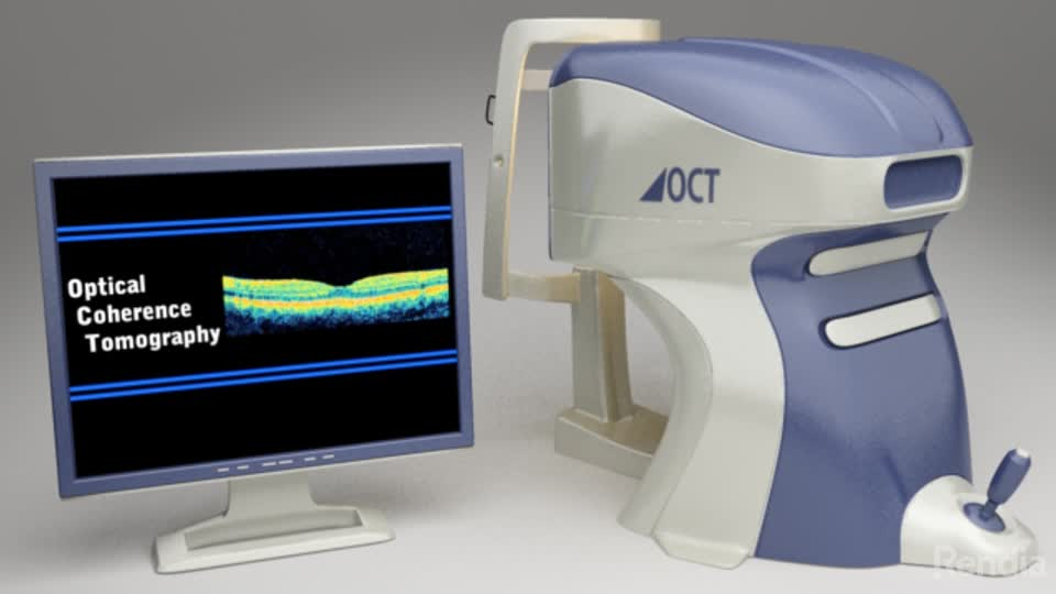 OCT   Optical Coherence Tomography Scanner   Grand Forks ND