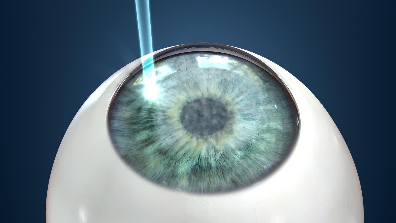 Lasik Eye Surgery Providers In Charlotte Nc
