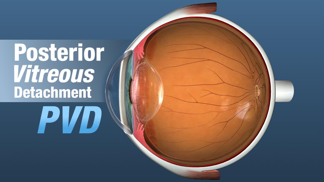 Posterior Vitreous Detachment Louisville   Eye Floaters