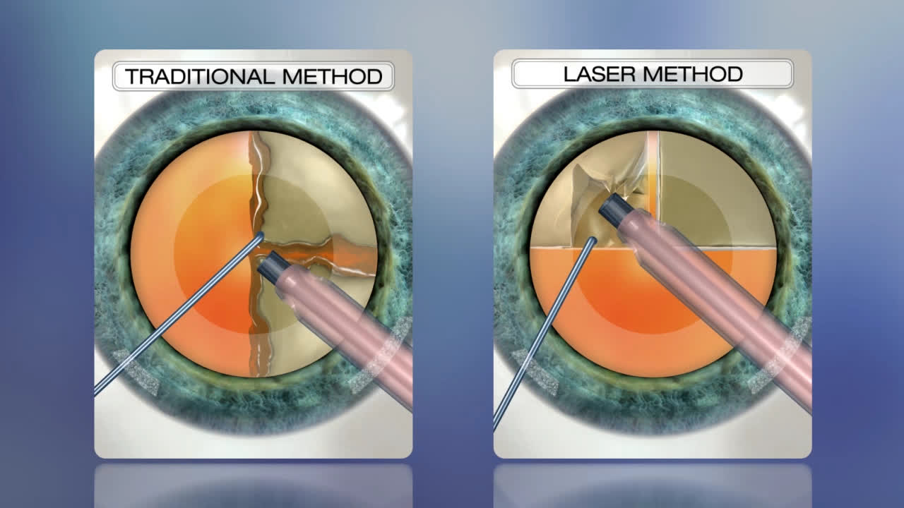 Cataract Surgery Benefits Of Laser Over Traditional
