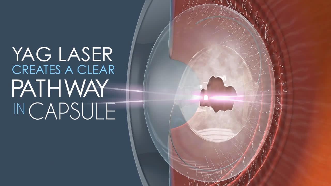 yag laser ögon