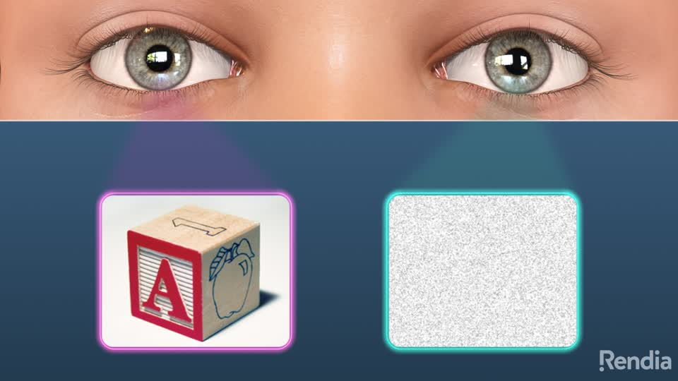 3778eaf5188 Eye Health Consultants. 1. Amblyopia  Overview