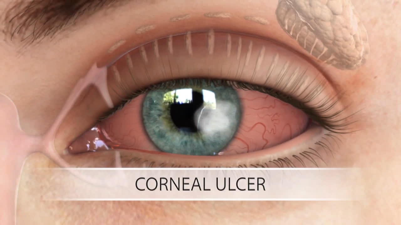 Keratoconus and Corneal Transplant