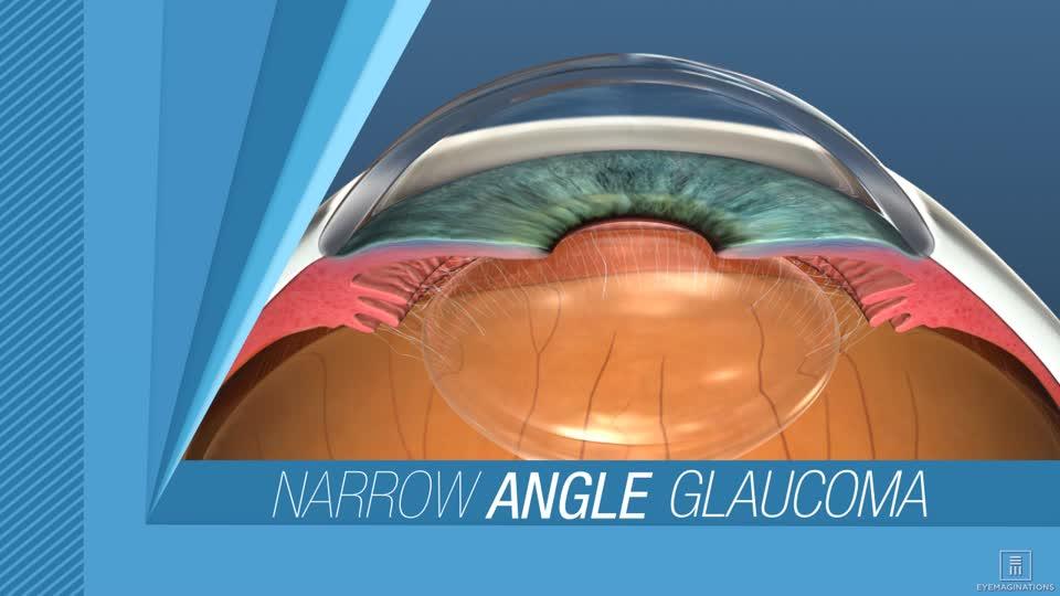 lorazepam narrow angle glaucoma