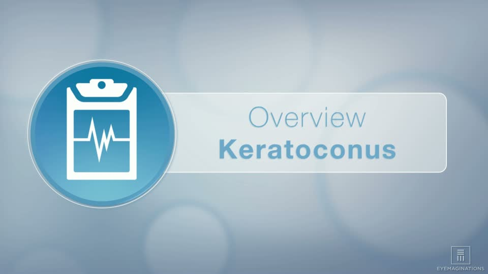 Wisconsin Keratoconus Treatment Milwaukee | Franklin