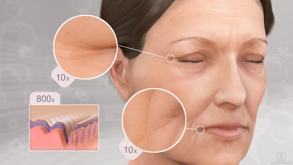 fillers Providence facial