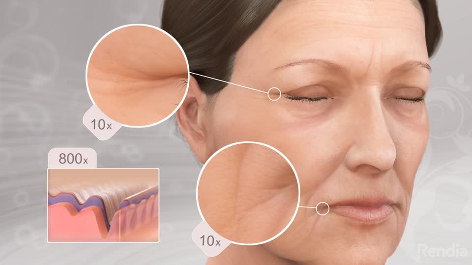 JUVEDERM XC Exton West Chester County PA