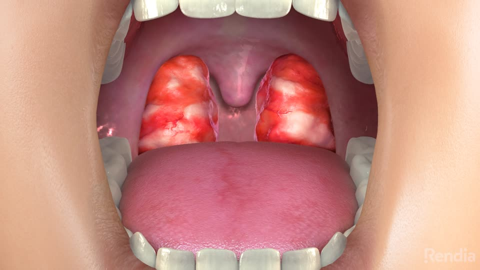 Adult sore throat and adenoids agree