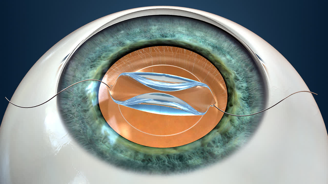 Advanced technologies for Cataract Surgery offered at GHEI