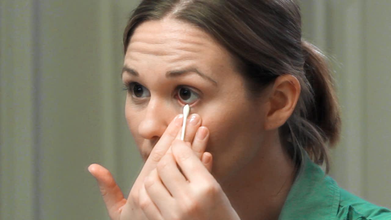 Resultado de imagen de eyelid hygiene medical care