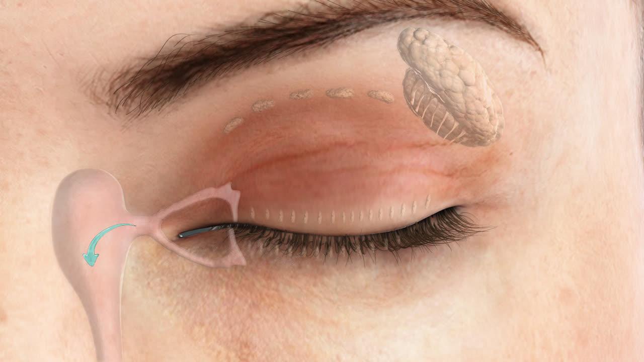 Reconstructive Surgery Doylestown   Eyelid Skin Cancer Hopewell