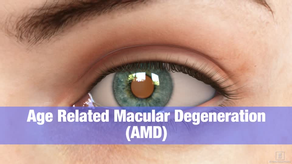 Macular Degeneration Armd Centre For Sight