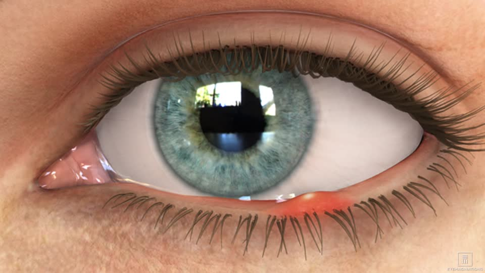 Peninsula Laser Eye Medical Group Mountain View