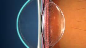 0192d9b5660e04 Myopia  Treatment Overview