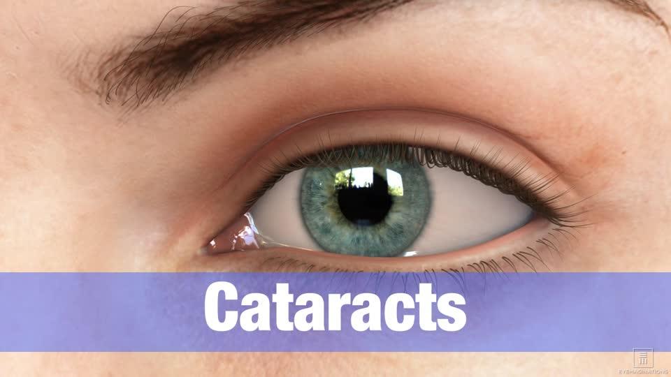 Arlington Cataracts Washington Dc Cataract Surgery Arlington Eye