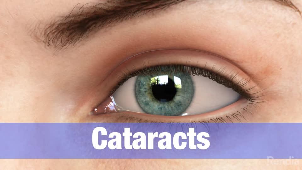 7835813ab9301 Especialista em Catarata   Hospital de Olhos