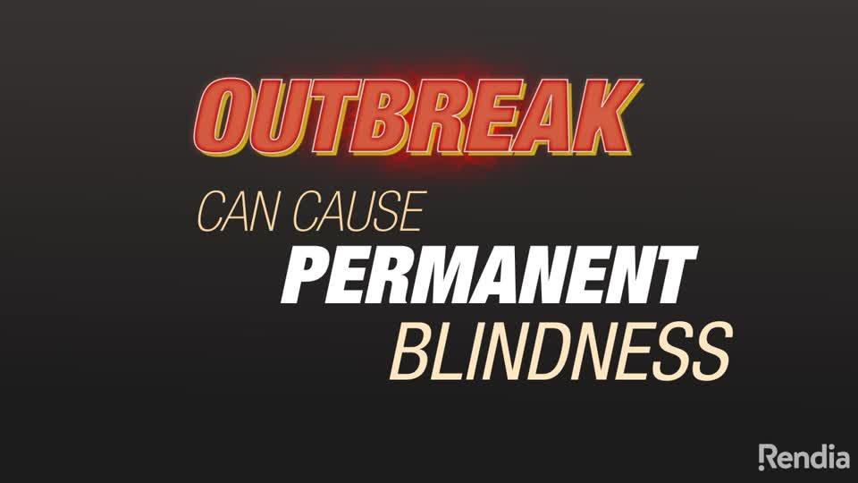 Ocular Herpes Louisville   Cornea Transplant Florence   Bennett & Bloom