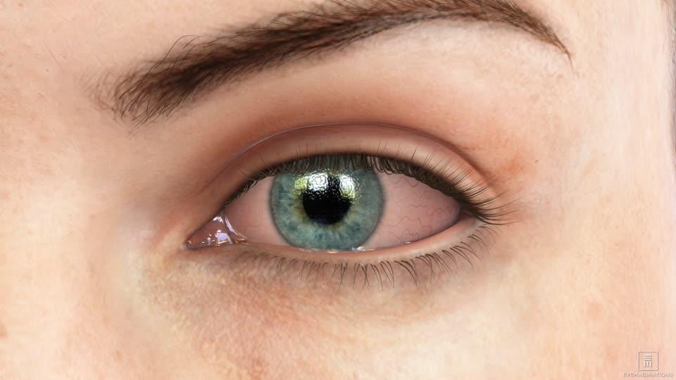 Oogontsteking Slijmvlies Ontsteking Infectie Conjunctivitis
