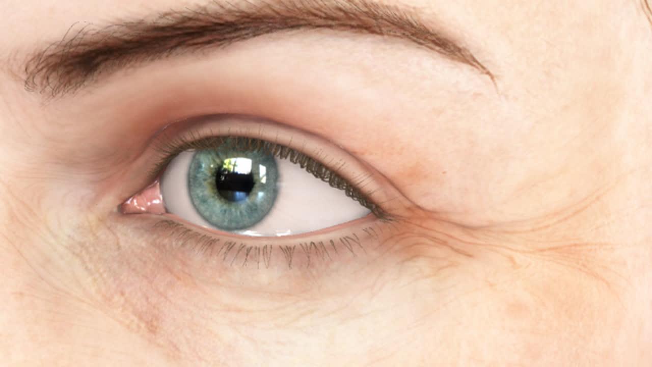 Botox Cosmetic Minneapolis | Facial Fillers Bloomington - Blaine