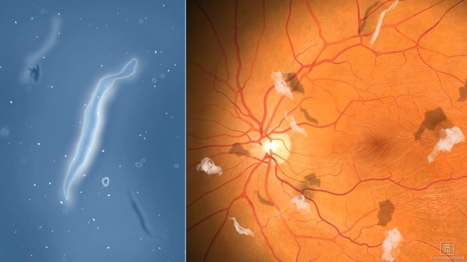 Eye Floaters Treatment Long Island | Retina Treatment Queens, NY