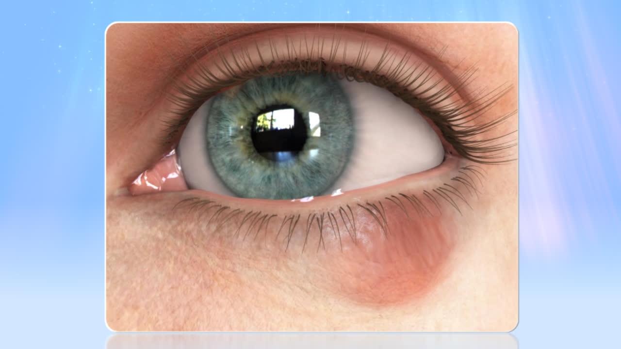 Chalazion Cyst Eye Conditions London Eye Unit