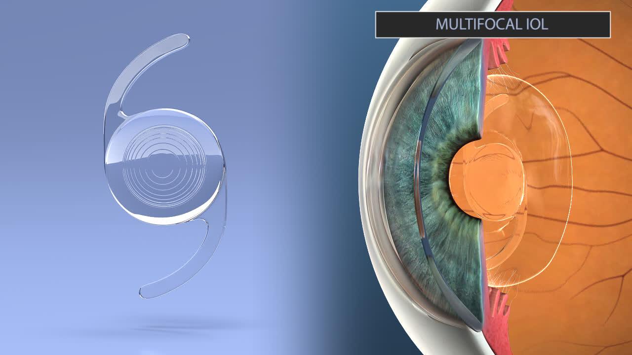 Multifocal Lens Implants Los Altos   Cataract Surgery San