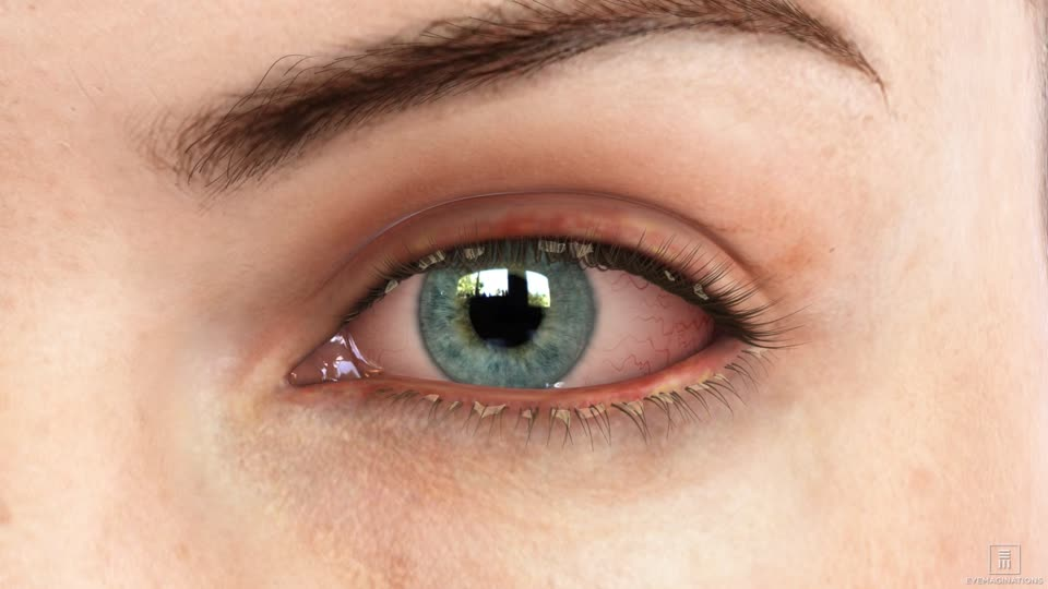Blepharitis Louisville Dry Eyes Florence Kentucky