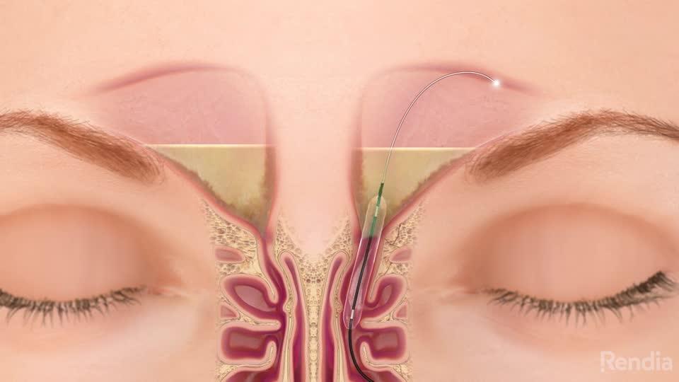 Balloon Sinus Dilation - Texas Ear, Nose & Throat Specialists