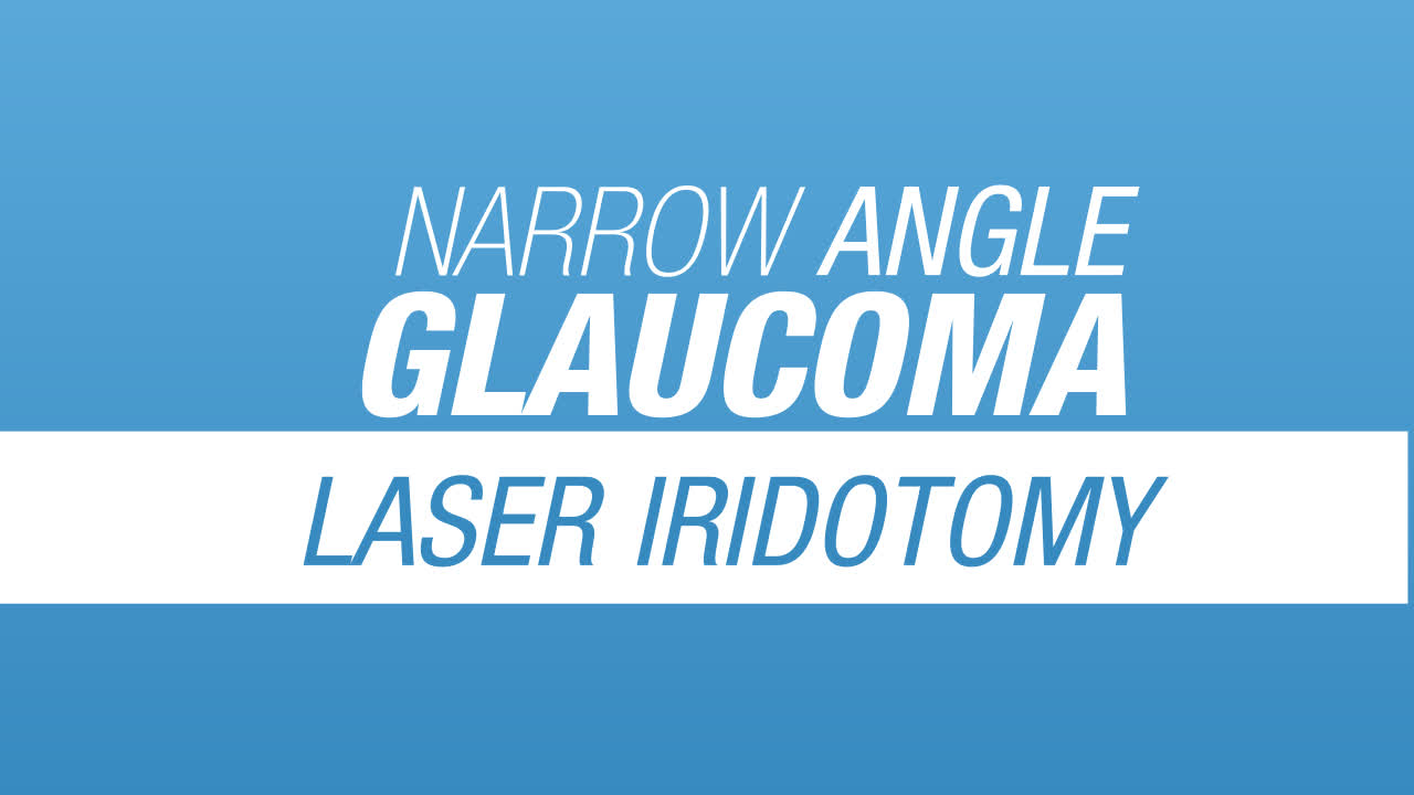 Side Effects of Laser Iridotomy | BrightFocus Foundation