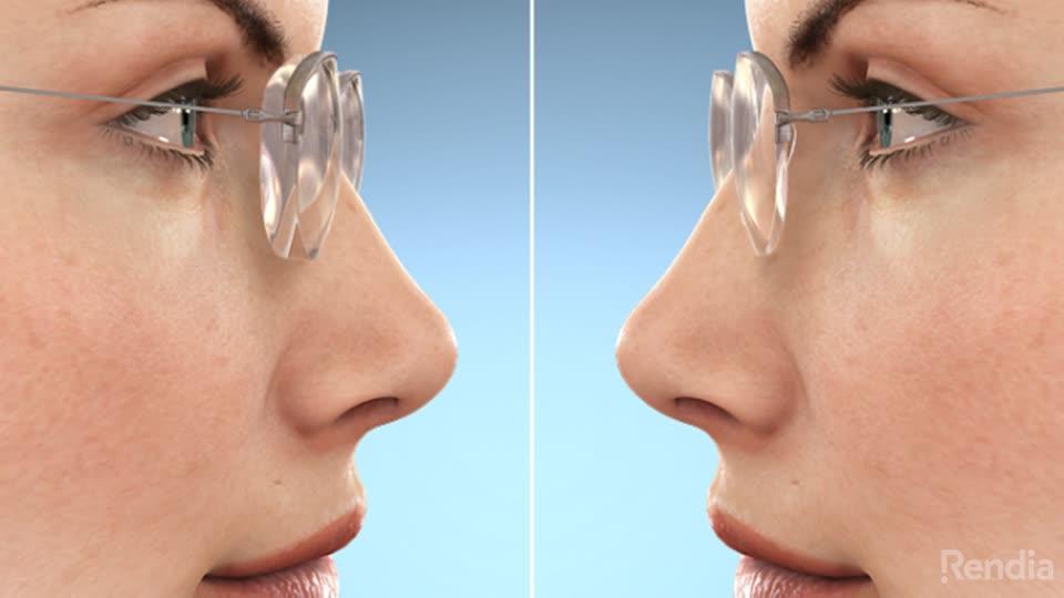 2f404176d0 North Dakota Eye Clinic. 1. Hi-Index Lenses